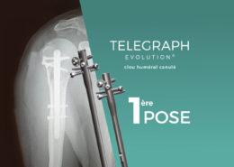 Telegraph Evolution